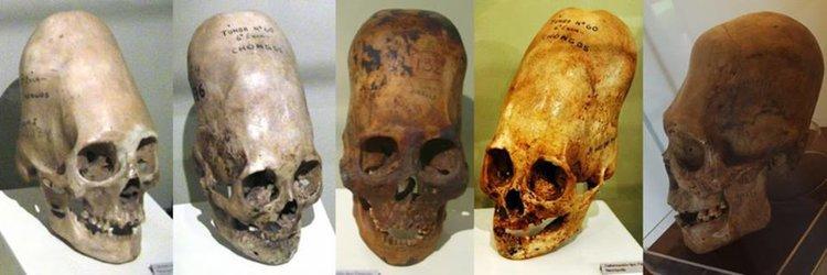 Обявиха нов ДНК анализ на мистериозните черепи от Паракас