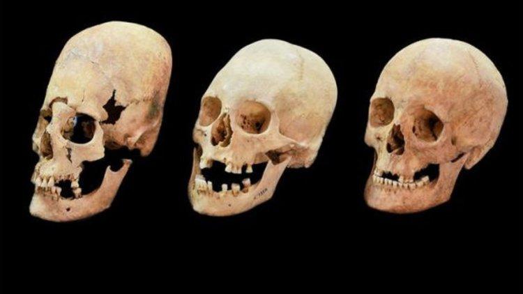 Средновековни баварски черепи, вероятно на българки, вляво и в средата показват признаци на деформация. Черепът вдясно не е деформиран. Снимка: BAVARIAN STATE ARCHAEOLOGICAL COLLECTION