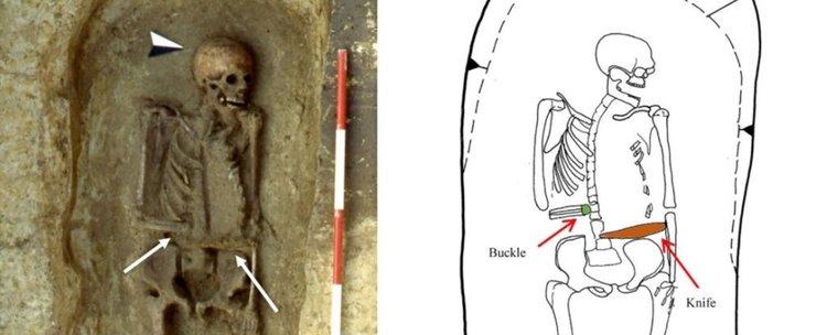 Скелет на 15 века с протеза-оръжие на ампутираната ръка