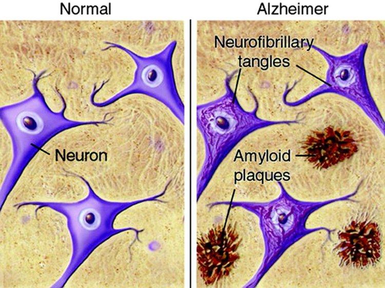Отдавна познато лекарство срещу астма лекува деменция