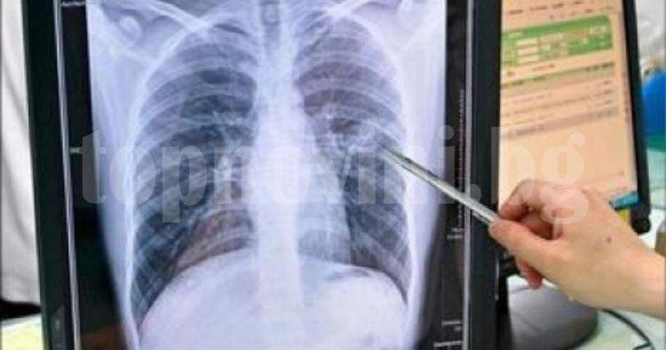 Седмица на отворени врати в болницата, преглеждат безплатно за туберкулоза