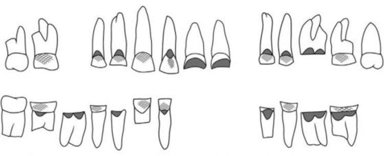 Жена от Древен Египет използвала зъбите си професионално