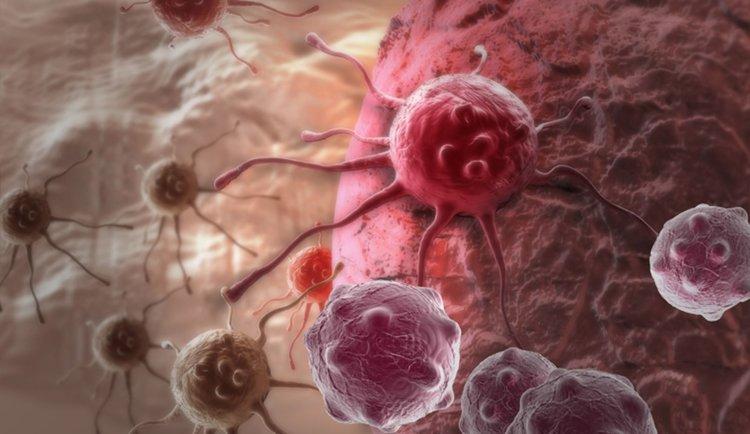 Органите на здрава жена били присадени на четирима души. И всички те развили рак