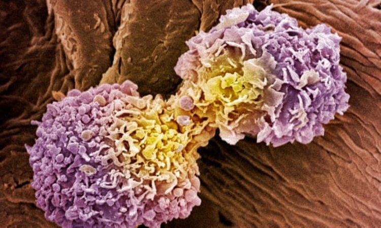 Революционен 10-минутен тест познава имаме ли рак с точност 90%