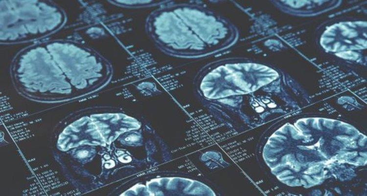 Мозъците на жените са с 3 години по-млади от тези на мъжете