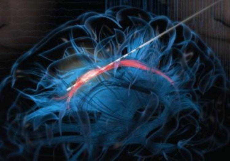 Електродът, с който е извършена дълбоката мозъчна стимулация
