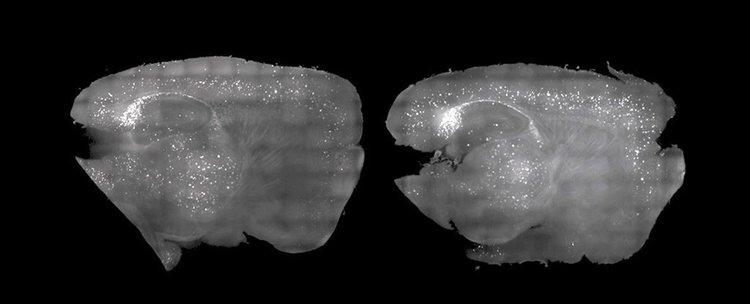 Ще лекуваме Алцхаймер със светлина и звук?