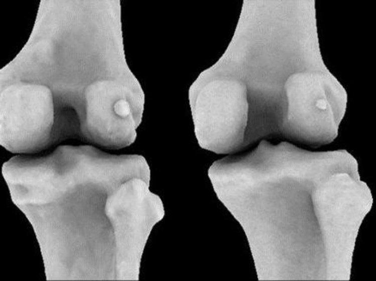 Древна кост бележи мистериозното си завръщане в човешкото тяло