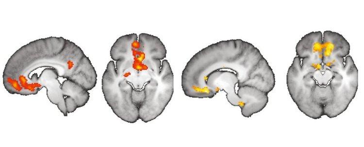 Въображението променя как възприемаме реалността на невронно ниво